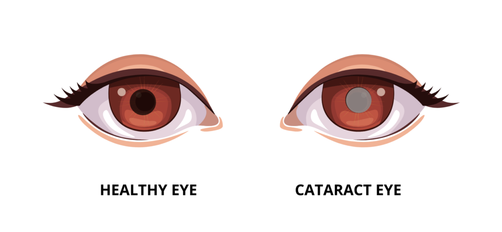 visual representation of a healthy eye versus an eye with cataract.